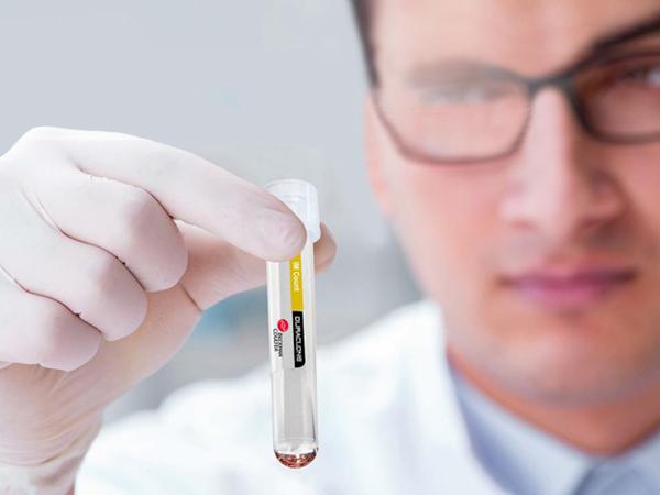 Holding DURAClone IM Reagent Vial