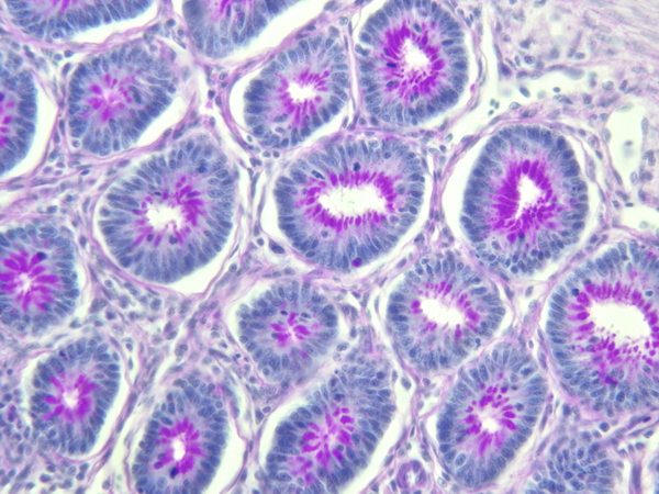 fixative-histology-sample-2017-08